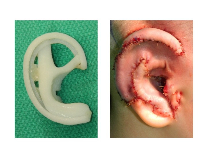 Medpore implant shown before implantation and the appearance of the ear immediately before placement of the dressing at the end of surgery.