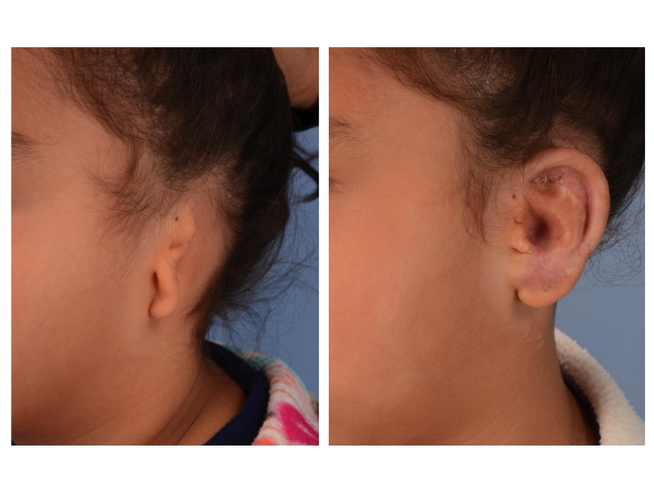 The patient above is shown before surgery on the left and 9 months after one Medpor based ear reconstruction procedure on the right. Note that the Medpor based procedure provides a projected ear with normal features and dimensions of the ear and rotation of the ear lobe into its normal position in a single surgery.
