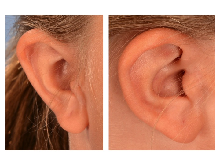 Accessory Tragus Branchial Remnant After Surgery