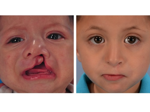 Cleft Lip Before and After Photos — Dallas Pediatric Plastic Surgeon ...