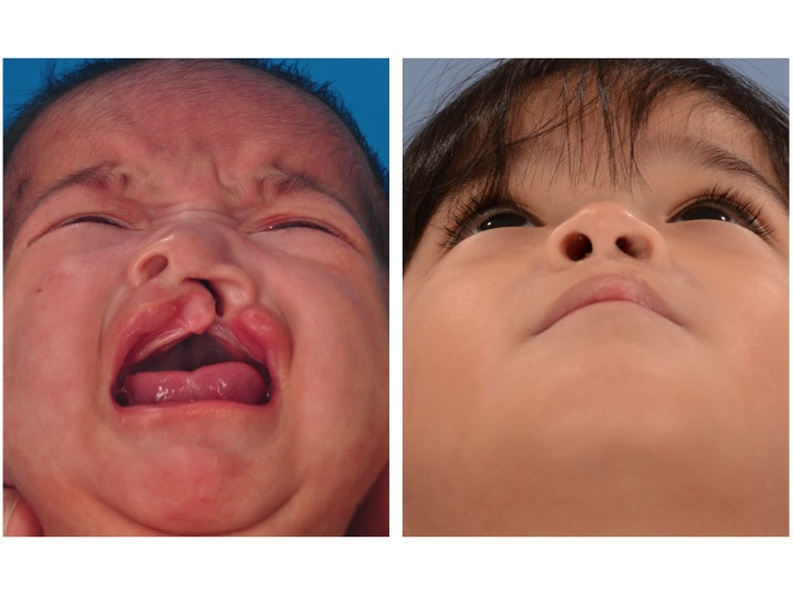 a study of cleft lip and palate Secondary cleft lip and palate surgery—variation and outcomes the researchers analyzed 130 children undergoing surgery to repair cleft lip and cleft palate at four specialized centers the patients were part of the americleft study, designed to compare surgical outcomes across north american cleft palate centers.