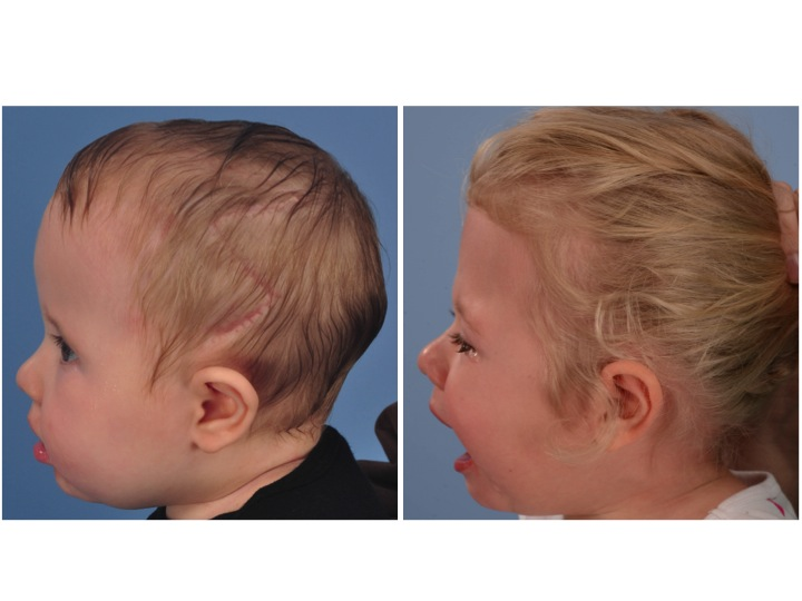 These pictures show the changes in the patient's appearance between the time of her PVDO (age 9 months) and the reshaping of her forehead and upper eye sockets (orbits) with fronto-orbital advacement (FOA) age 3 years old.