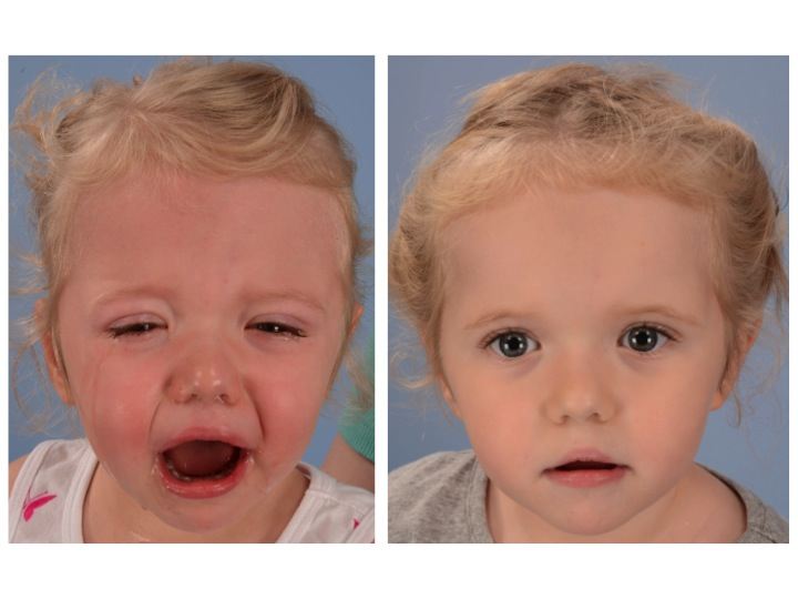 The pictures on the left above show the patient's appearance 2 years after her PVDO, just before her FOA. The images on the right are 6 months after the reshaping of her forehead and upper eye sockets (orbits) with fronto-orbital advancement (FOA) performed at age 3 years old. Note the improved contour of the forehead from broad and flat to narrower and more rounded. The upper portion of the eye sockets have been moved forward and downward.