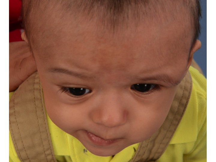 This is the same child 4 months after his FOA. Note that the left forehead and upper eye socket have been moved much farther forward than the right side. This is because the closed coronal suture on the left side will not provide the forward growth that the right open coronal suture will.