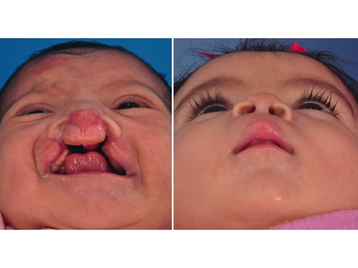 Bilateral Cleft Lip Palate
