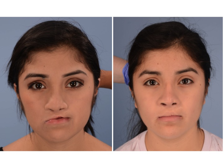 Lefort + Rhinoplasty 1.jpg