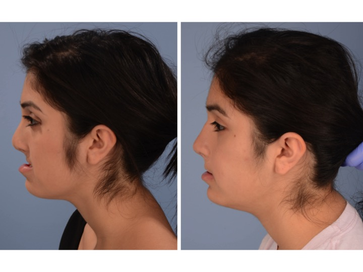 Lefort + Rhinoplasty 4.jpg