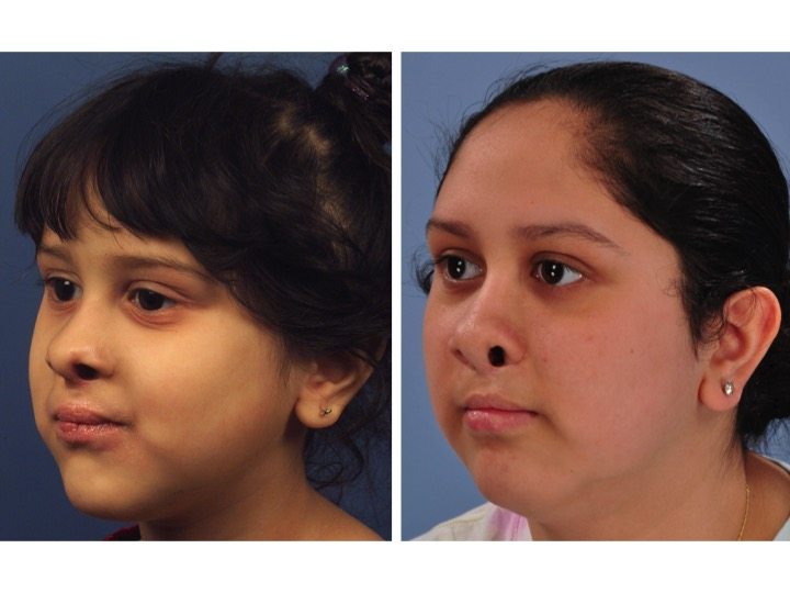 These pictures show how the nasal shape can look good during early childhood, but can worsen with growth due to the scar tissue from previous surgery.
