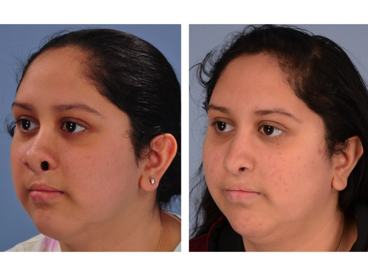 Cleft Rhinoplasty Before and After 3/4 View Dr. Derderian