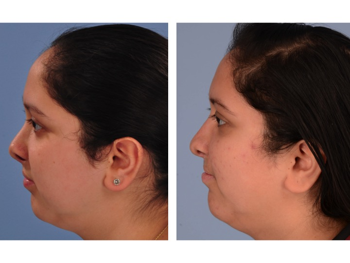 Cleft Rhinoplasty Before and After Lateral View Dr. Derderian