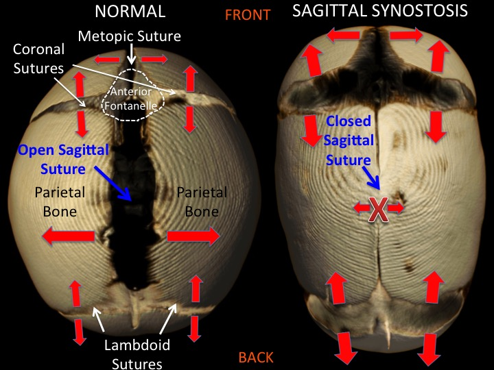 This figure shows the location of the major cranial sutures and the direction and magnitude of growth as indicated by the size of the red arrows. When the sagittal suture closes in sagittal synostosis the parietal bones can't grow to add width to the skull. The remaining open metopic, coronal and lambdoidal sutures increase growth to accommodate the growth of the brain, leading to a scaphocephalic head shape that is long, narrow in the back with added fullness in the forehead.