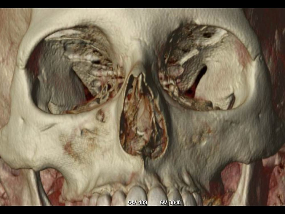 Dr Derderian 3D CT Example Deviated Septum