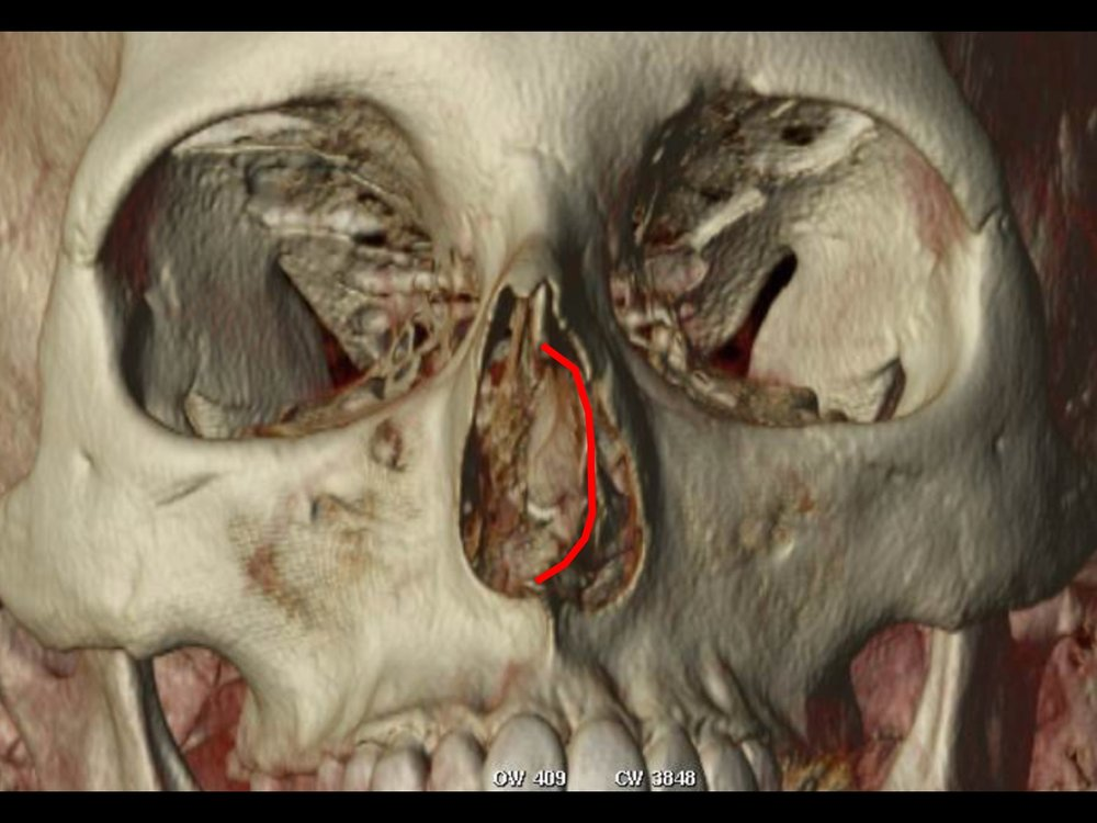 Dr Derderian 3D CT Example Deviated Septum Outlined
