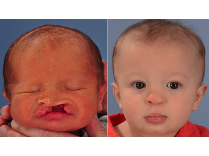 Cleft Lip and Palate -