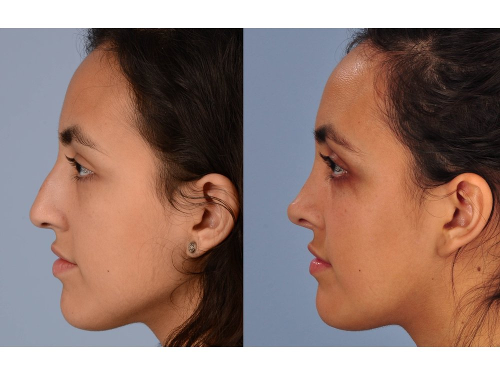drderderian.com Rhinoplasty before and after side view