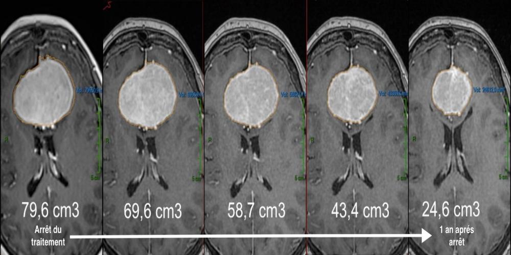 Regrese nádoru rok po ukončneí hormonální léčby