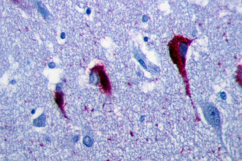 Figure 1. The use of immunohistochemistry to visualize neurons in hippocampus tissue