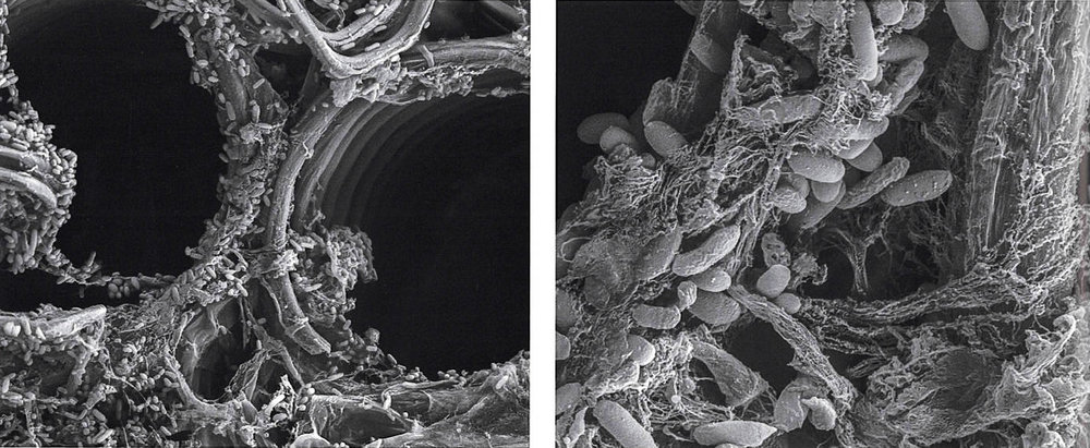 Inspirational Scientific Imagery: Electron micrograph of Bacteria lining the interior surface of a plant. 2000x magnification (LHS) 5000x magnification (RHS)