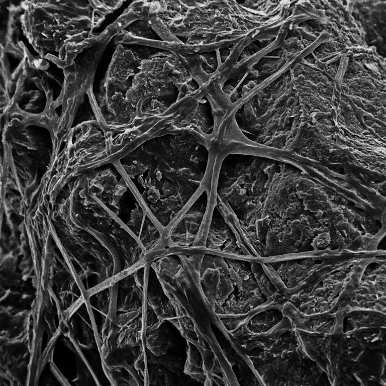 Copy of Inspirational Scientific Imagery: 2000x Magnification of fungal web surrounding a soil particle. Electron micrograph by Thilo Eickhorst.
