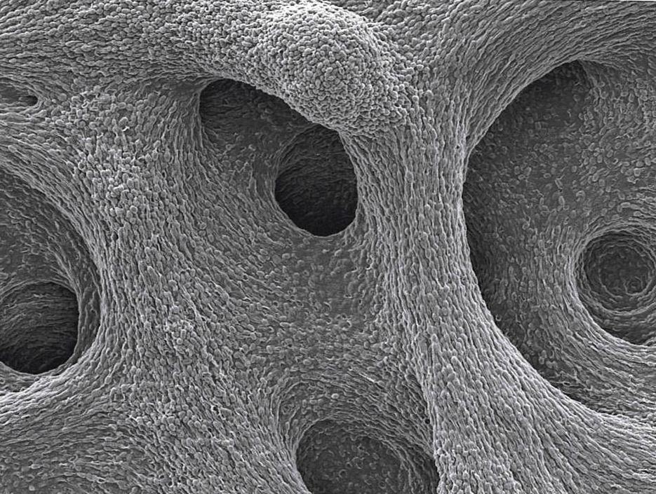 Copy of Inspirational Scientific Imagery: 2000x electron micrograph of cavernous bacterial structures..