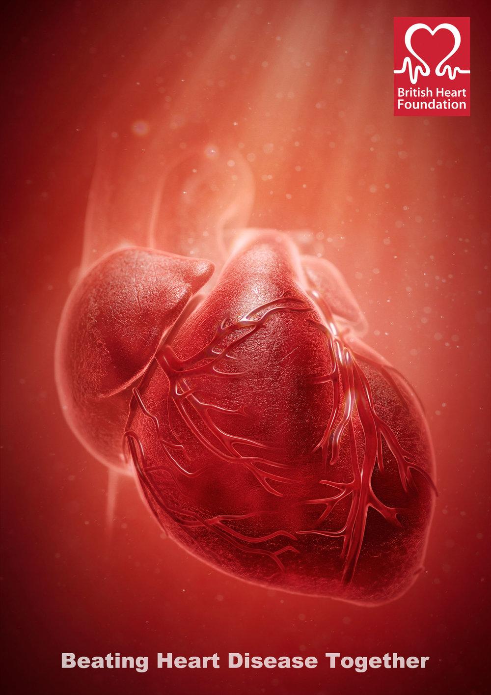 BOOM_CGI_MEDICAL_british-heart-foundation.jpg