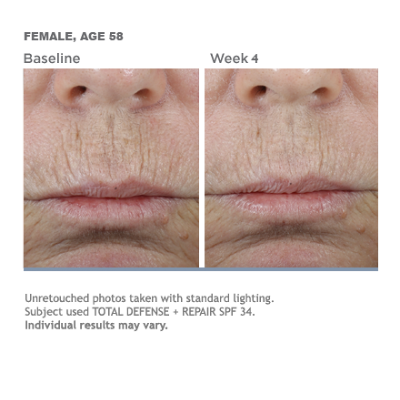 Before and after photos of a 58 year-old woman who used SkinMedica products to reverse signs of aging due to infrared ray exposure.