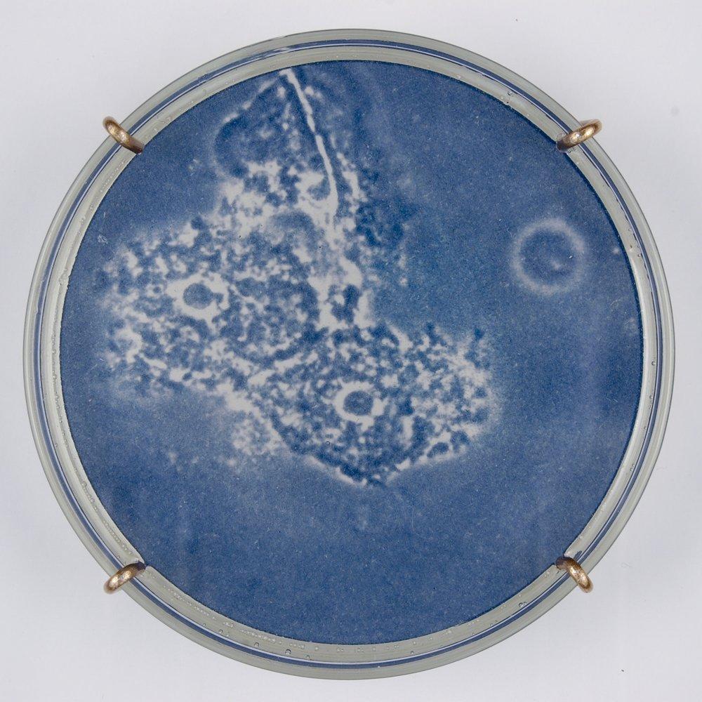 Bacterial vaginosis I (detail)