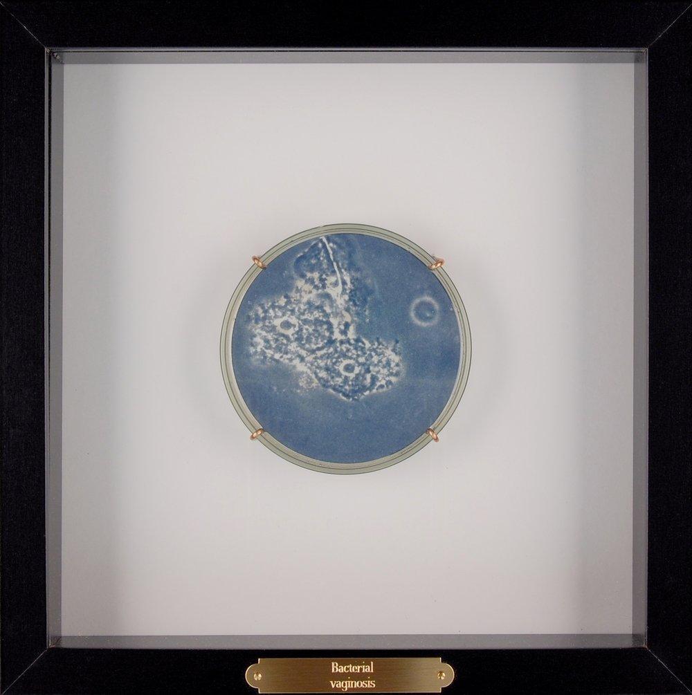 Bacterial vaginosis I