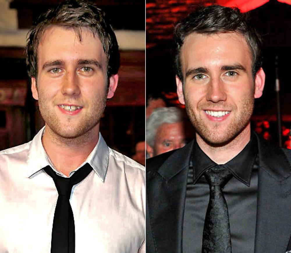 Smile Makeover 2 Matthew Lewis on Did Zac Efron Get Married