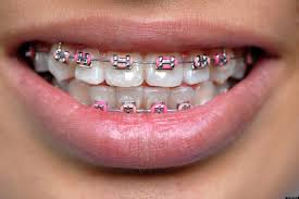 Braces as a Fashion Statement Mint Dental