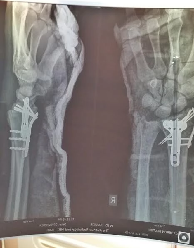 The pins, screws & plates in Cam's right arm, as a result of the very unnecessary Olympic Semi Final crash.