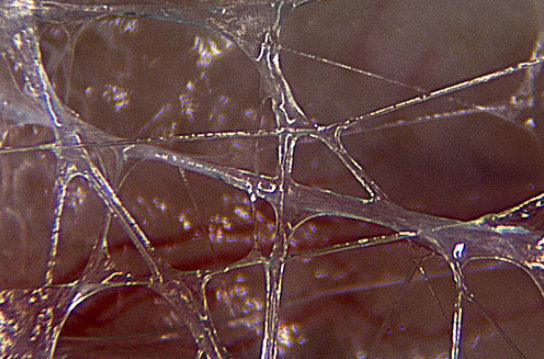 Image of fascia by Dr. J.C. Guimberteau