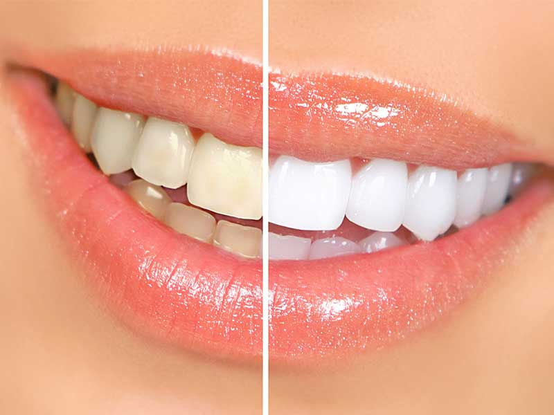 Teeth whitening hamilton, Glasgow