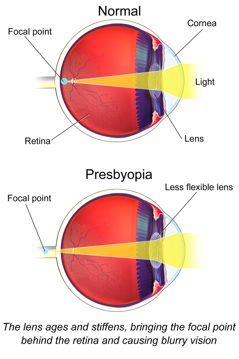Presbyopia Diagram