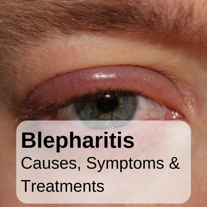 Midtown Optometry - Blepharitis —Causes, Symptoms