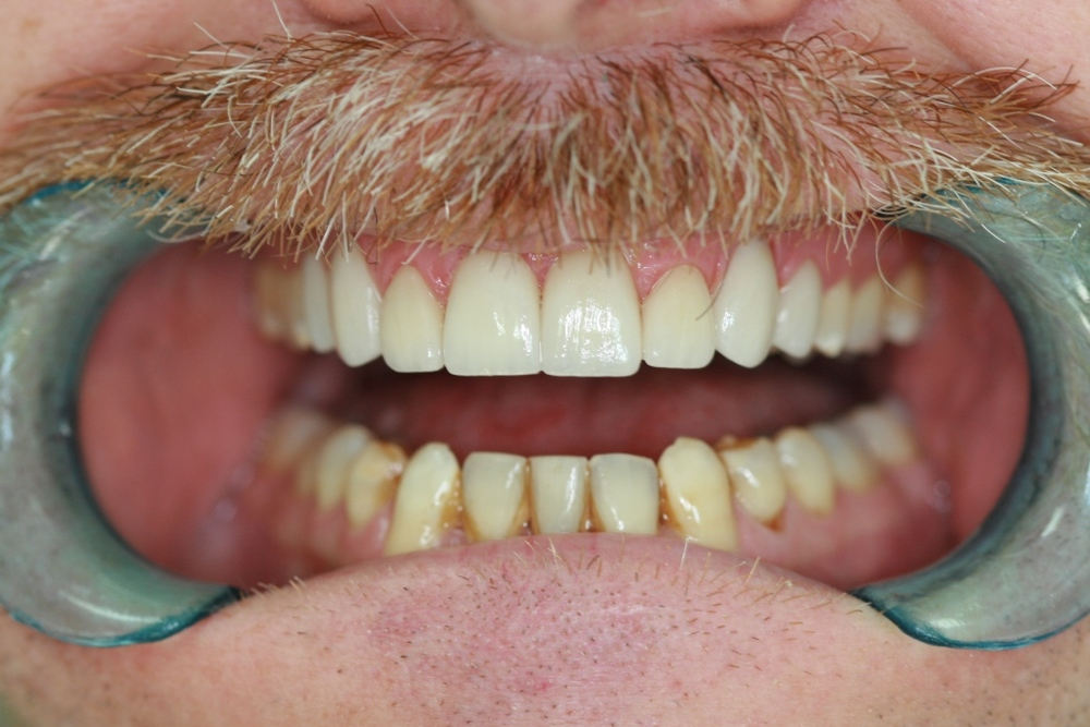 Veneers After Retracted.JPG