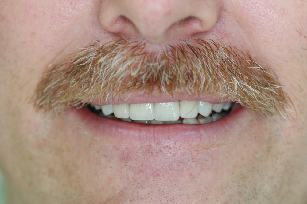 Veneers After Smile.JPG