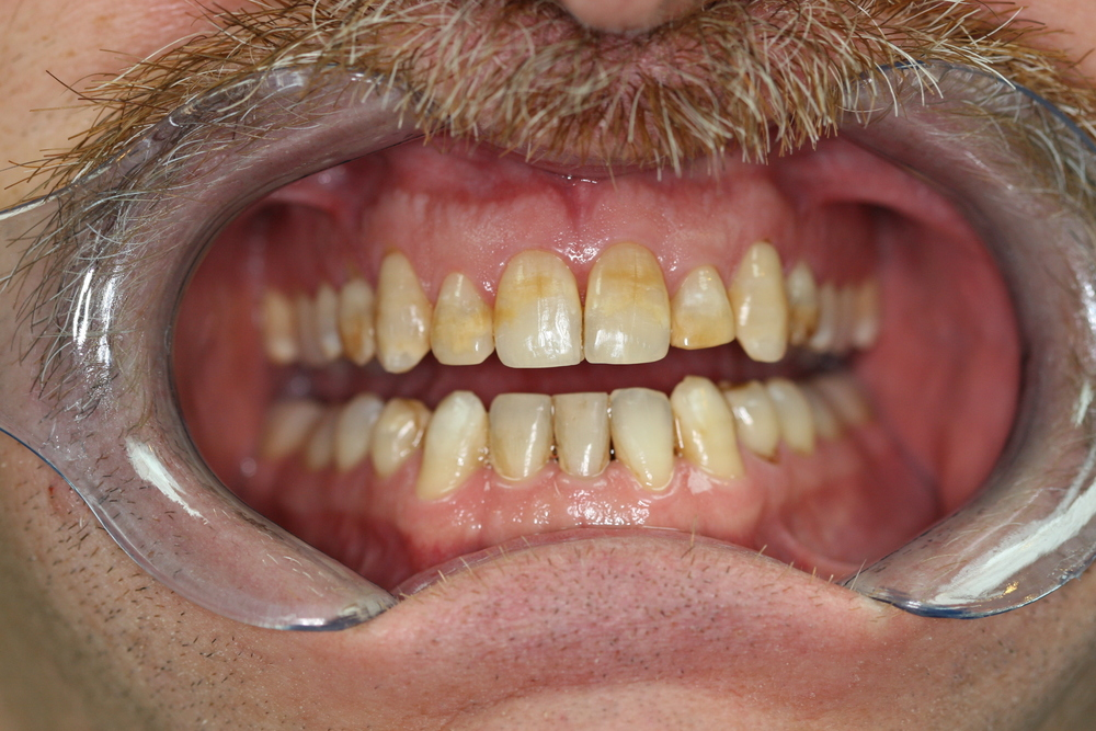 Veneers Retracted Before.JPG