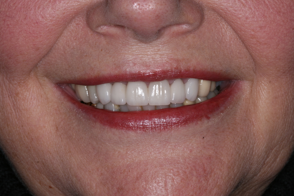 Anterior Crowns After Smile.JPG