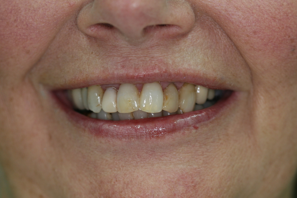Anterior Crowns Before Smile.JPG