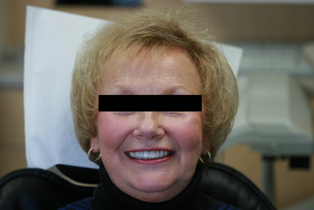 Anterior Crowns After Full Face.JPG