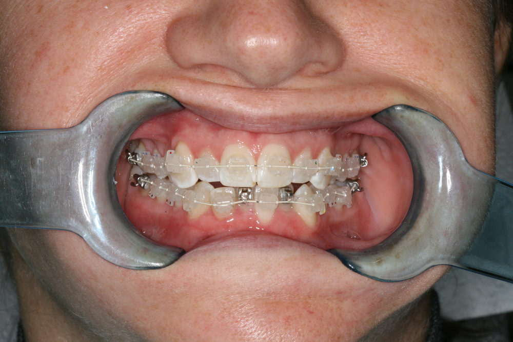 6 month smile brackets.JPG