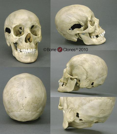 Human Female Skull with Multiple Gunshot Wounds