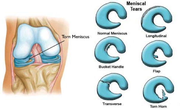 Different types of meniscal tear.