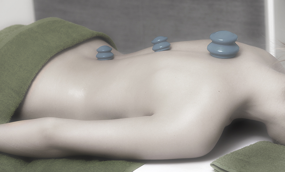 cupping-therapy2.jpg