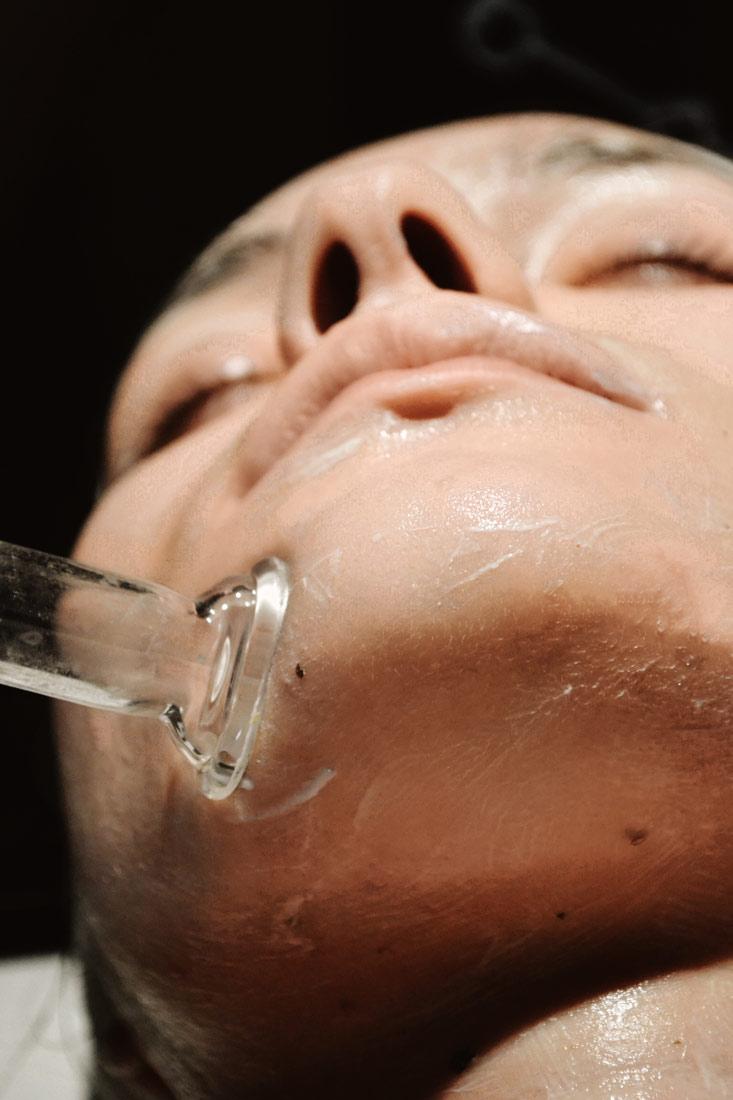 facial-cupping.jpg