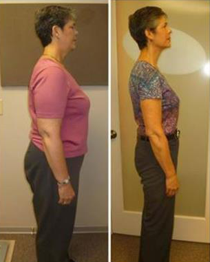 karen ideal protein weight loss diet success