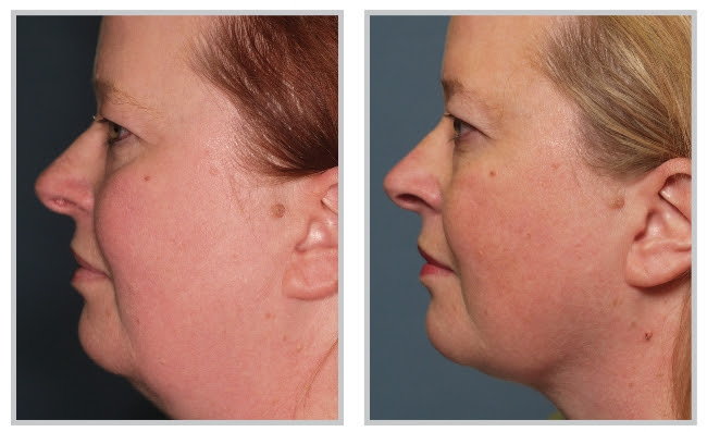 neck_laser_lipo_before_after_1
