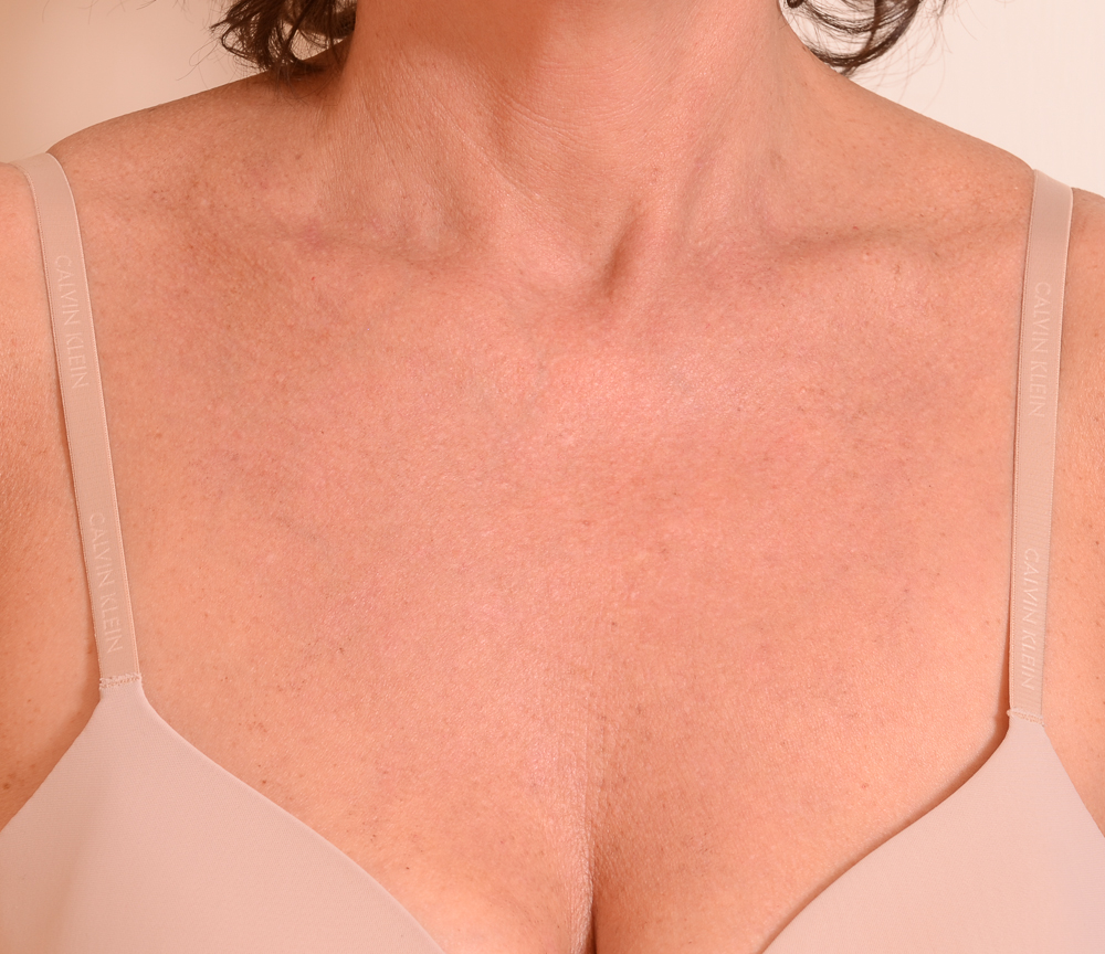 Chest & Neck After