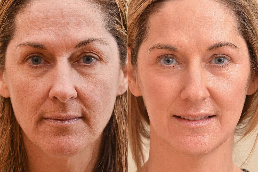 Lavey rocks facial collagen filler BITCH, SLUT, WHORE